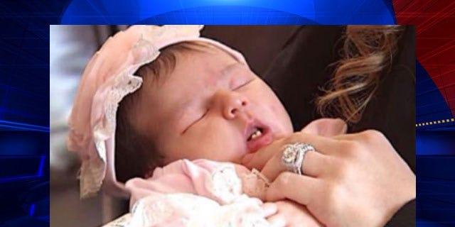 Alyssa Bella Bailey was born with two teeth.