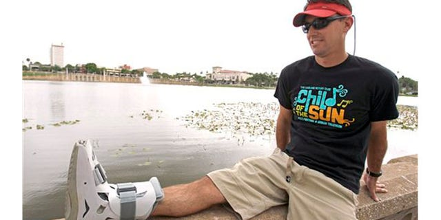 Greg Farris takes a break while wearing a protective boot as he helps set up for a weekend triathlon event in Lakeland, Fla. Farris injured his foot while running in barefoot running shoes.