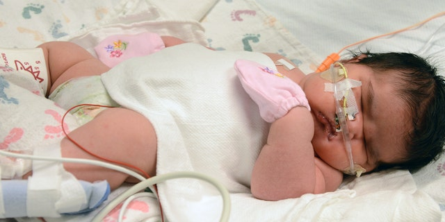 Dec. 2, 2014: This image provided by Children's Hospital Colorado shows Mia Yasmin Garcia shortly after birth.