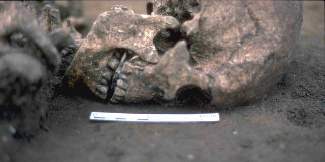 The man's skeleton was found with a flat stone in his mouth, and a new study indicates that his tongue may have been amputated when the man was alive.