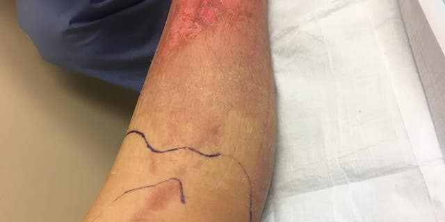A photo of Murphy's leg after the blisters were drained.