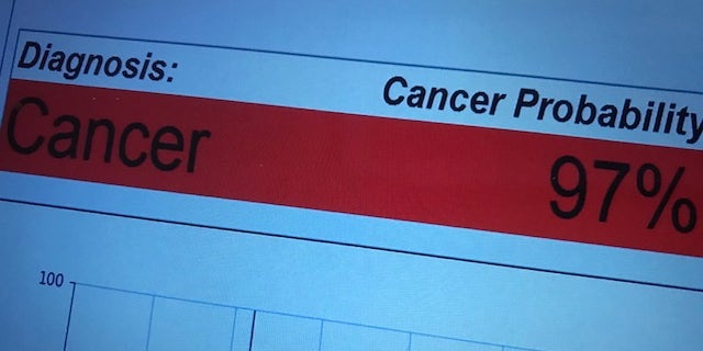 Researchers say the pen was 96 percent accurate in detecting four types of cancer: breast, ovarian, thyroid, and lung cancer. (Fox News)