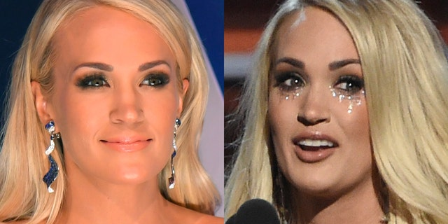 Carrie Underwood before (left) and after her fall.
