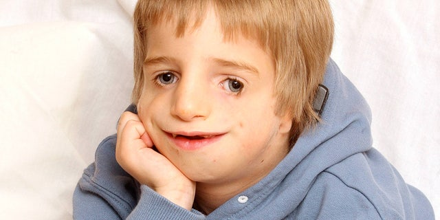 Carter was born with Treacher Collins syndrome and was tormented by his peers for years over his looks.