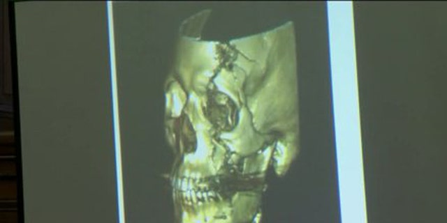 Officer Graham Kunisch, whose CT scan was shown in court Wednesday, suffered permanent injuries in the 2009 shooting. (Fox 6)