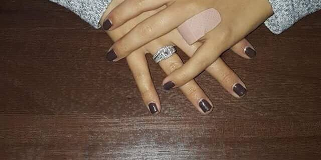 Chelsey Brown initially thought her wedding band had gotten caught on the fence, but when she looked down she realized her finger was missing.
