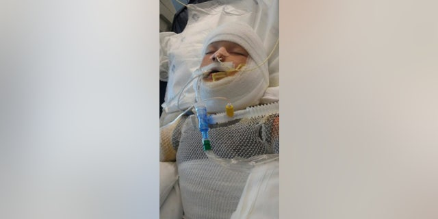Special-needs boy, 10, doused with gas, set on fire in Texas town
