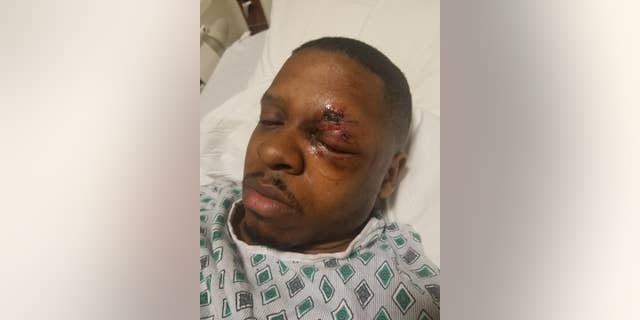 Rasaan Urquhart, 25, is warning others to be safe around fireworks on the Fourth after going blind in one eye after an incident in February.