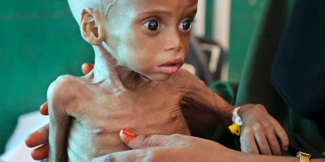 FILE -- In this March 11, 2017 file photo a malnourished child is treated at the Banadir Hospital in Mogadishu, Somalia. In a report released by Oxfam at the World Economic Forum in Durban, South Africa, Wednesday, May 3, 2017 it said that Africa has higher levels of poverty than previously thought because decades of economic growth have only benefited a small elite. (AP Photo/Mohamed Sheikh Nor, File)