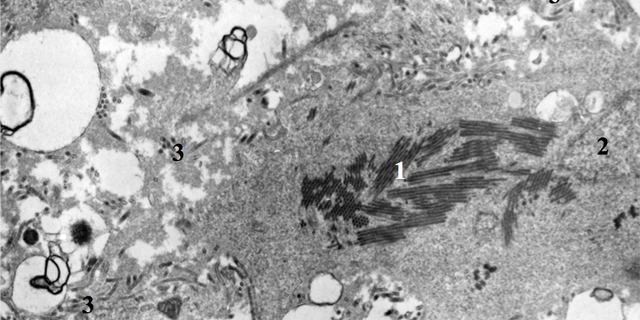 In this image, particles of Ebola virus are replicating in liver tissue.