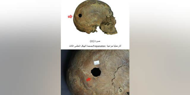 A hole has been made in one of the skulls, the result of trepanation, or trepanning, a surgical procedure that dates back thousands of years. (Egyptian Ministry of Antiquities)