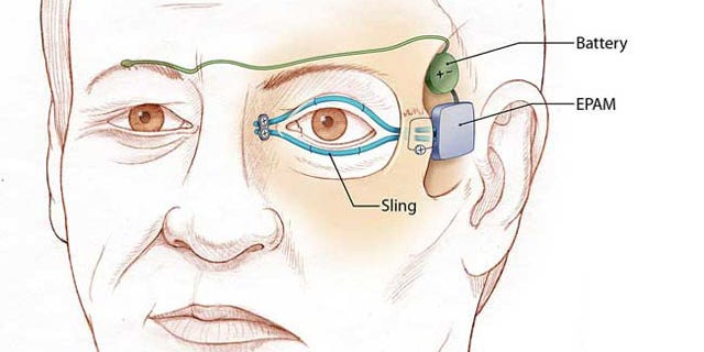 "Illustration of left eyelid ""sling"" that is attached to an artificial muscle. The power supply and artificial muscle are implanted in the temple. When the normal right eyelid blinks, the electrical sensor (green) sends a signal to the battery to activate the artificial muscle."