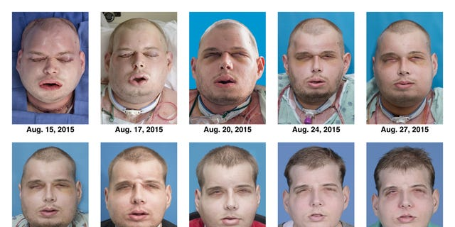 This combination of Aug. 15, 2015 to Nov. 11, 2015 photos provided by the New York University Langone Medical Center shows the recuperation of Patrick Hardison after his facial transplant surgery in New York. Hardison was burned Sept. 5, 2001, in Senatobia, Miss. A 27-year-old father of three at the time who'd served for seven years as a volunteer firefighter, he entered a burning house to search for a woman. The roof collapsed, giving him third-degree burns on his head, neck and upper torso. (Mary Spano/Eduardo D. Rodriguez/Wyss Department of Plastic Surgery/NYU Langone Medical Center via AP)