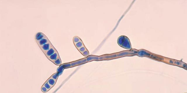 The fungus Exserohilum, pictured, has been found in some of the patients affected by the meningitis outbreak.