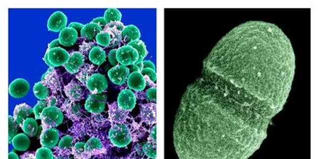At left, undated handout image provided by the National Institute of Allergy and Infectious Diseases (NIAID) shows  a clump of Staphylococcus epidermidis bacteria (green). At right, undated handout image provided by the Agriculture  Department showing the bacterium, Enterococcus faecalis. (AP Photo/NIAID, Agriculture Department)