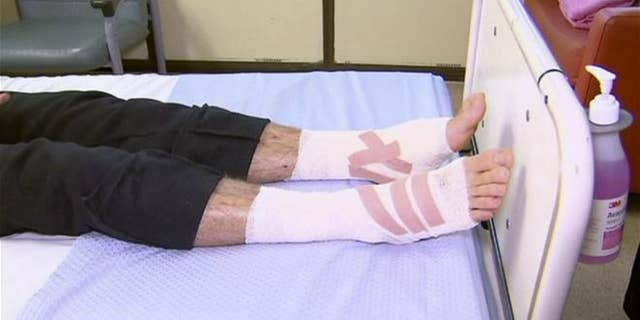 In this image made from video, legs of Sam Kanizay, 16, are seen on a bed of a hospital where he is treated, in Melbourne, Australia.