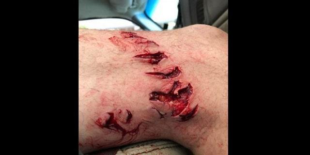 WARNING GRAPHIC IMAGE: Shark bites Texas beachgoer, who is