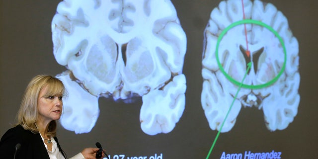 Ann McKee, director Boston University's center for research into the degenerative brain disease chronic traumatic encephalopathy, or CTE, addresses an audience on the school's campus Thursday, Nov. 9, 2017 about the study of NFL football player Aaron Hernandez's brain, projected on a screen, behind right, in Boston