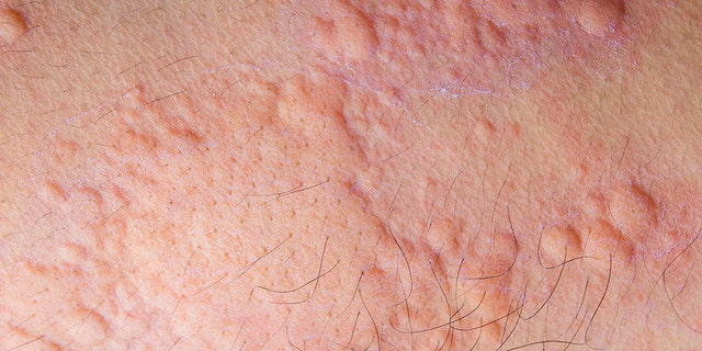 Heat hives are an allergic reaction to sweat caused by overheating, or the heat itself.