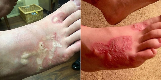 An example of a hookworm rash.