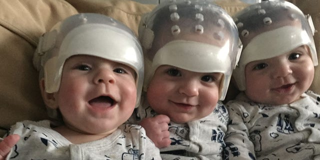Hunter, Jackson and Kaden were diagnosed with variations of Craniosynostosis