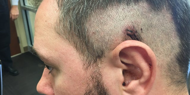 Chris McFarland shows where the bullet grazed his head Sunday afternoon.