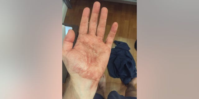 The bloodied hand of Mark Kindschuh, 19, a Boston College student who helped save a man's life during the London terrorist attack.