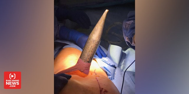 Surgeons worked for four hours to safely remove the spear.