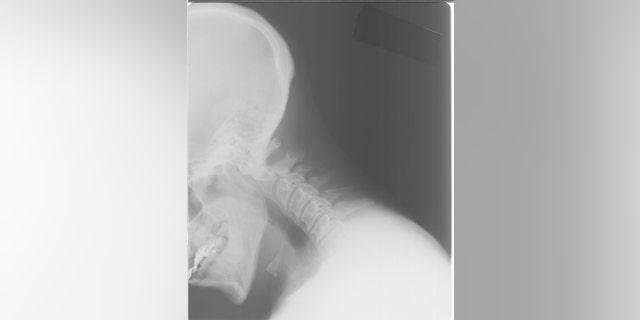 A neck X-ray image
