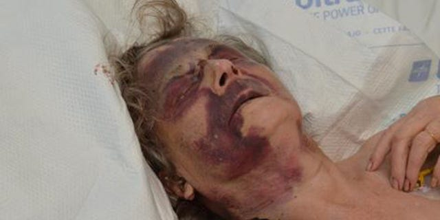 Iris Warner, a 90-year-old woman in the UK, was brutally assaulted in her sleep. Police are searching for her attacker.