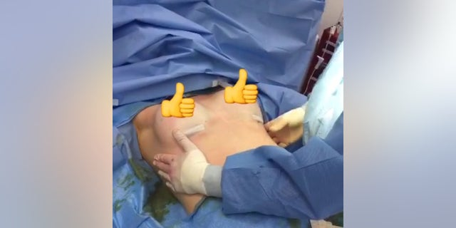 Jessica Wilson, 29, of Brooklyn, N.Y., pictured here, agreed to have her breast augmentation broadcast on Schulman's Snapchat to promote educating other patients about the surgeon's practice.