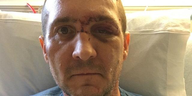 Joshua Morrison told Fox 12 intruders ambushed him in his home.