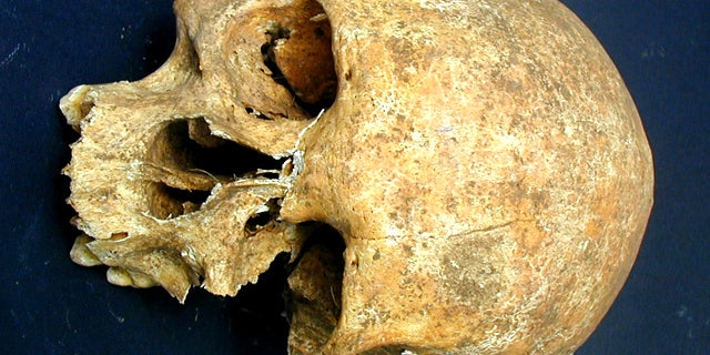 Bone wasting reveals the owner of this skull to have suffered from leprosy. An unhealed gash on the forehead suggests that the man died a violent death, perhaps in battle.
