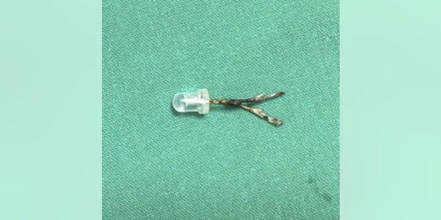 "Dr. Divya Prabhat, head of the ENT department at Wadia Hospital in Mumbia said, ""To our surpise this happened to be a 2 cm LED bulb, which I have not seen before, despite performing thousands of bronchoscopies."""