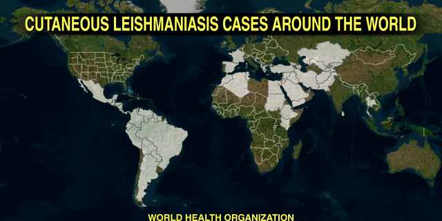 Cutaneous Leishmaniasis affects about 1.2 million people each year in 88 countries.