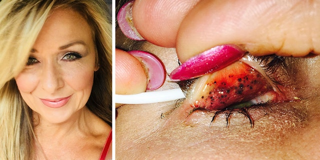 """Theresa Lynch, 50, left her mascara on for 25 years and a doctor discovered something shocking underneath her eyelids. Now, Lynch is warning others to """"properly take your makeup off every single night."""""""