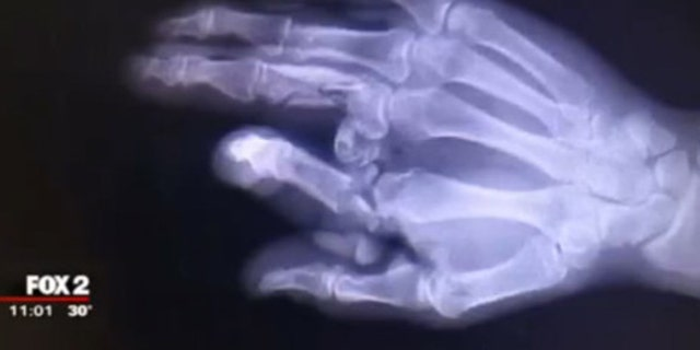 The X-ray above shows the right hand of Oakland County Sheriff Deputy Tom Kangas.
