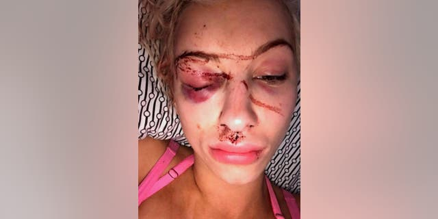 Dolak's injuries included a skull fracture, brain hemorrhaging, and permanent damage to an optical nerve.