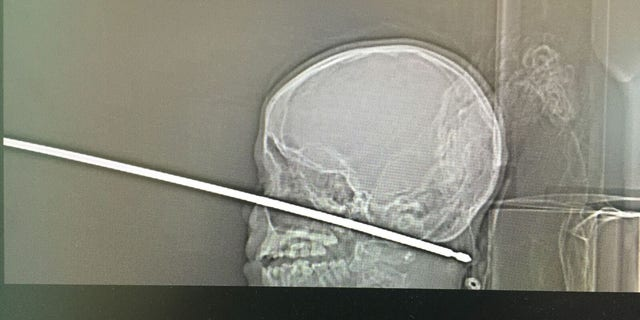The X-ray shows the skewer that went into the boy's face.