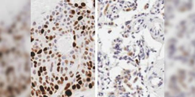 Compared to a control (left), mice treated with a chemotherapy drug using the device experienced significant growth reduction as confirmed by the lack of brown staining for a marker of tumor growth. Photo Credit: University of North Carolina at Chapel Hill