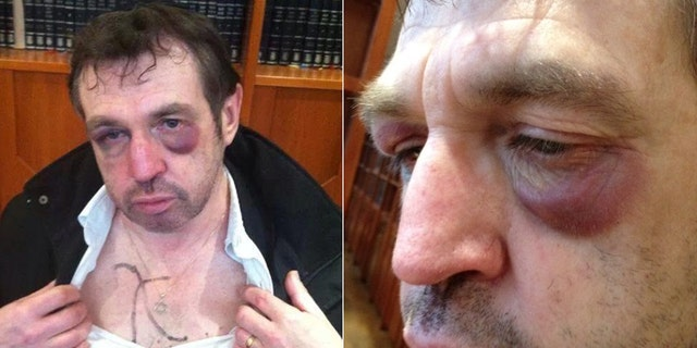"""The 59-year-old man, identified only as """"David,"""" said he was leaving a kosher restaurant in Paris when three men beat him savagely. (The Algemeiner)"""