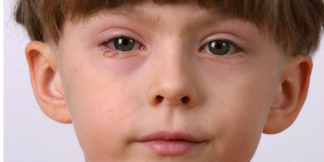 ill allergic eyes - conjunctivitis
