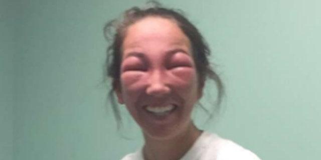 Emily Petrozza got poison ivy in her eye.