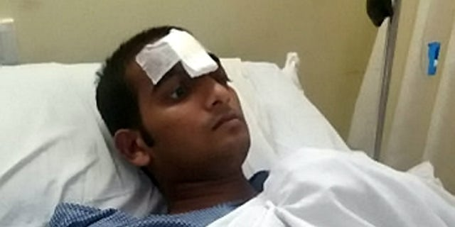 An Indian youth was discharged from hospital a month after doctors successfully removed a 3.5-feet-long iron rod that had pierced his skull in a freak car accident. See SWNS story SWROD; Mohammad Taraque, 24, was released from the Apollo Gleneagles Hospital in Kolkata in West Bengal on Tuesday, a month after a complex brain surgery. Taraque had suffered a massive car accident on April 28 in which a 3.5 ft long iron rod of the roadside divider impaled his forehead leaving him profusely bleeding. He was brought to the hospital with very little life expectancy.