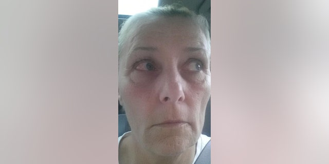 """Allan claims one of her eyes swelled to the size of a """"golf ball"""" following the incident."""