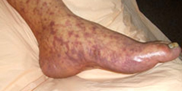 The disease can lead to the loss of limbs.