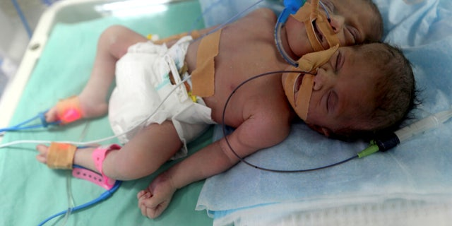 Palestinian conjoined twins lie in an incubator a day after they were born at Shifa hospital in Gaza City November 23, 2016.