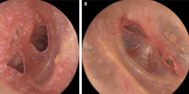 These images show the man's ruptured eardrums. The image on the left shows the man's right eardrum, and the image on the right shows his left eardrum.