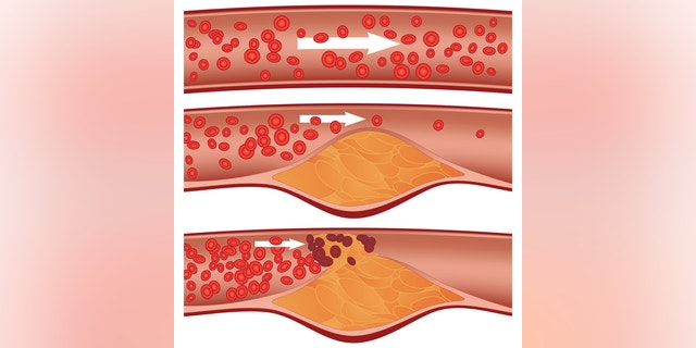 Cholesterol plaque in artery (atherosclerosis): Top artery is healthy. Middle & bottom arteries show plaque formation, rupturing, clotting & blood flow occlusion.