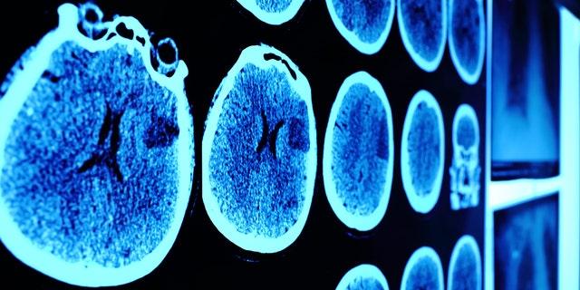 CT scans of skulls.